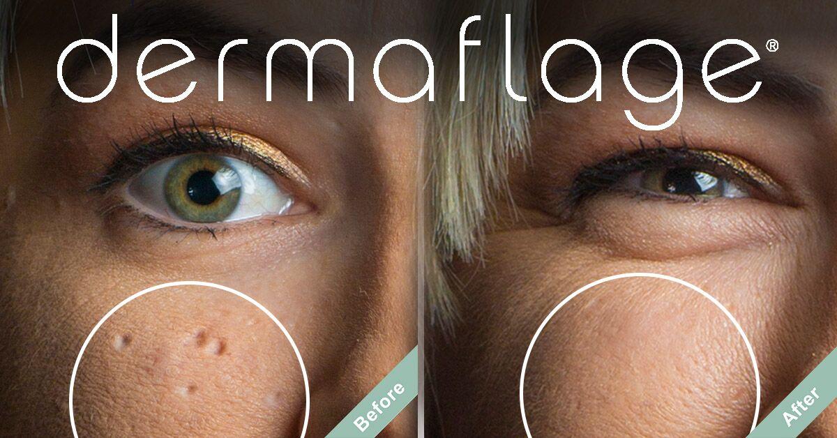 With Dermaflage Scar Filler Makeup